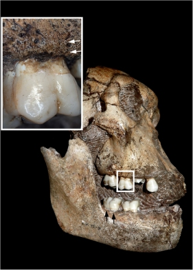 Photo: L'Abbé, E. N. et al. Evidence of fatal skeletal injuries on Malapa Hominins 1 and 2. Sci. Rep. 5, 15120