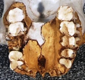 Stw 53 Homo gautengensis dentición