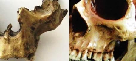 Homo antecessor fosa canina