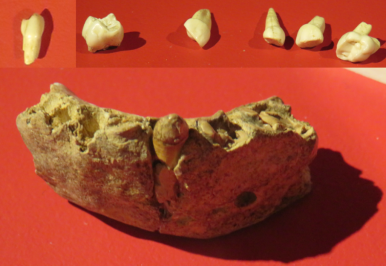 Neandertal mandible and teeth from Cueva Des-Cubierta