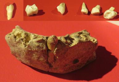 Neandertal mandible and teeth from Cueva Des-Cubierta