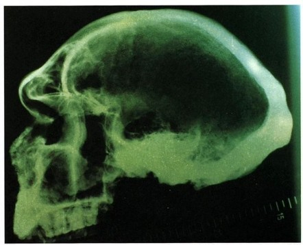Radiograph Petralona