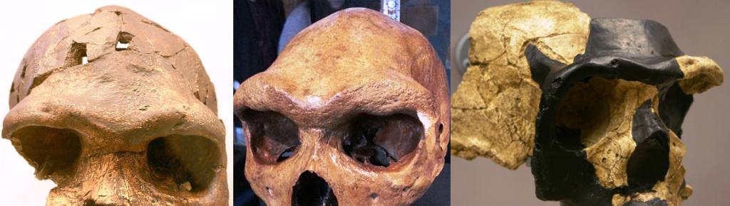 The supraorbital torus in hominins – Nutcracker Man