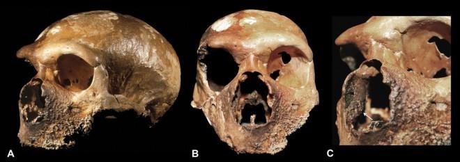 Guattari-1 neandertal (Monte Circeo)