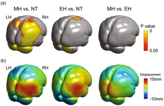 Neanderthal brain