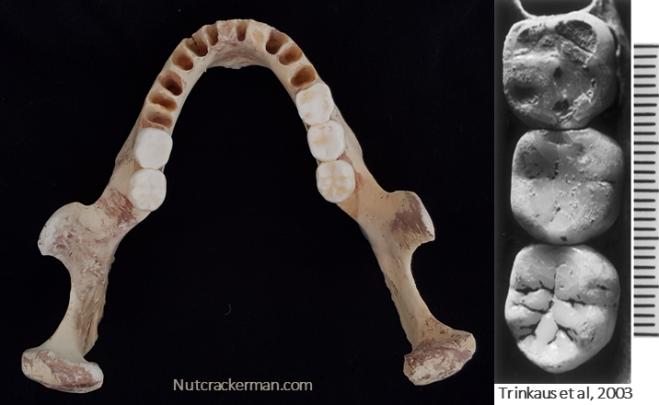Oase-1 dentition