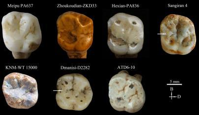 Comparativa con molar Meipu